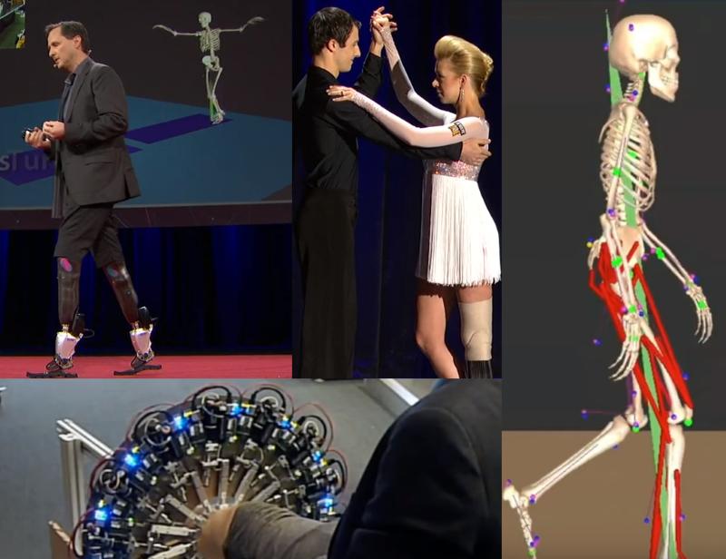 Bionics verhilft zum laufen klettern und tanzen